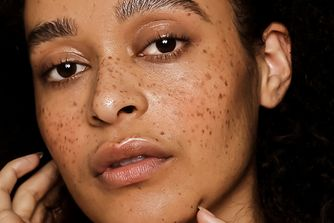 Why freckles are the statement-making beauty look du jour