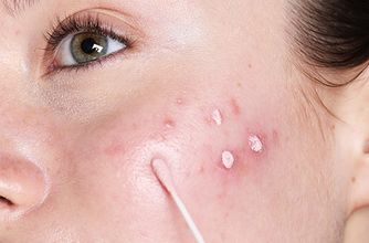 Ultimate solutions for acne-prone skin