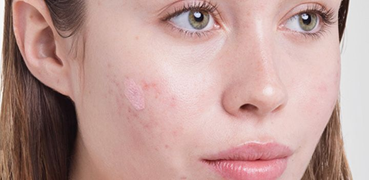 HOW STRESS AFFECTS YOUR SKIN (AND WHAT TO DO ABOUT IT)