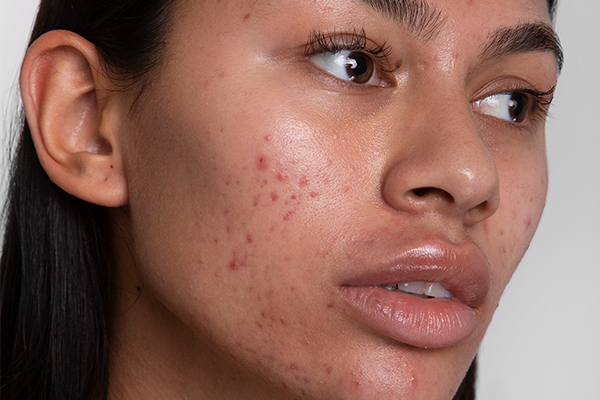 How to tackle scars and pigmentation | Cult Beauty