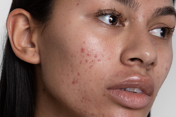 6 types of spot (and how to treat them) | Cult Beauty | Cult Beauty