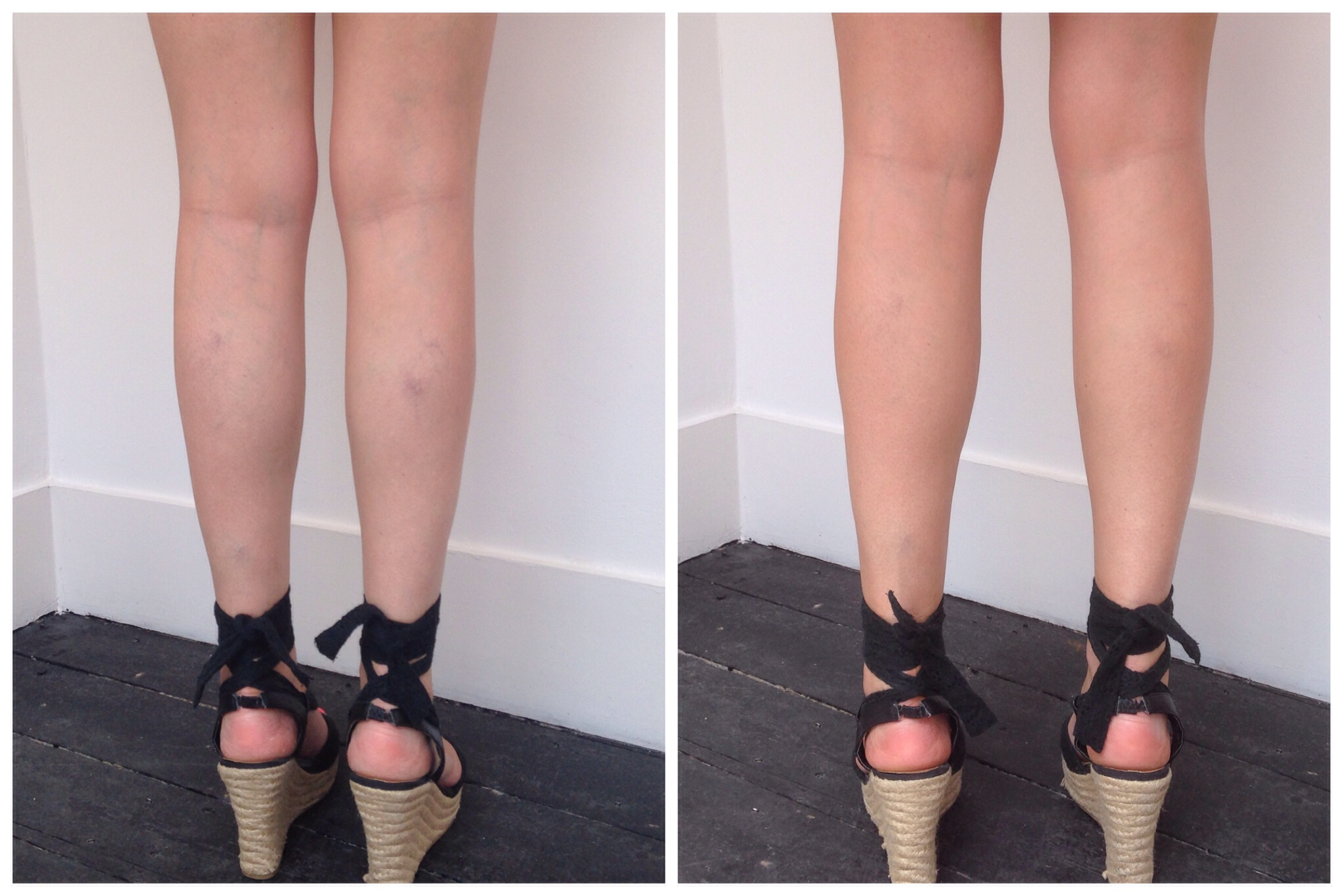 Leg Make Up to Cover Veins